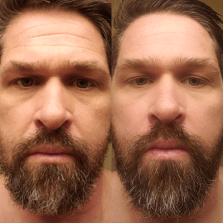 Before and After 4
